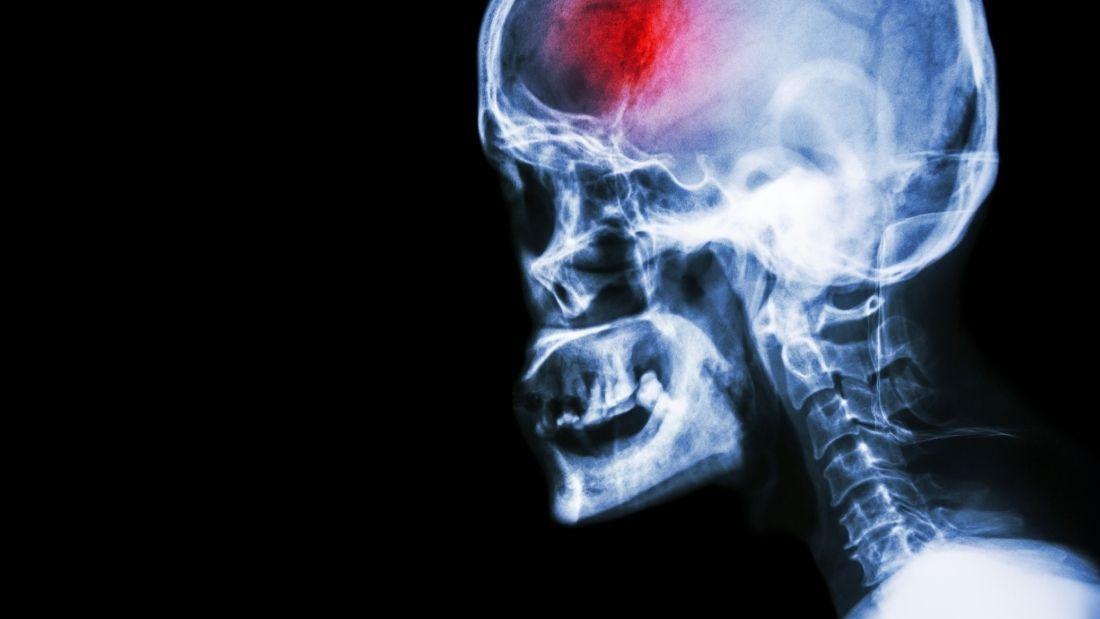 scan of brain after stroke