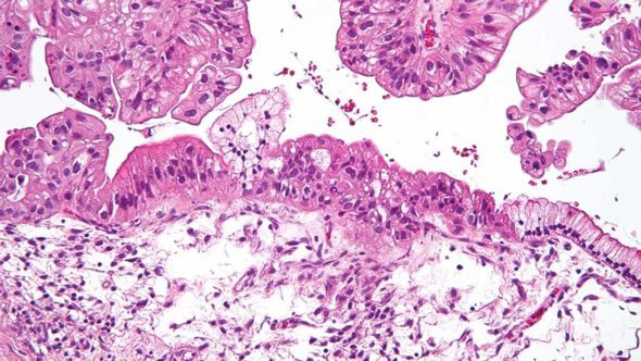 Mucinous ovarian tumour