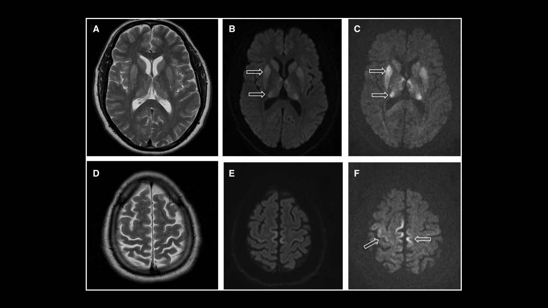 MRI of iCJD because of growth hormone
